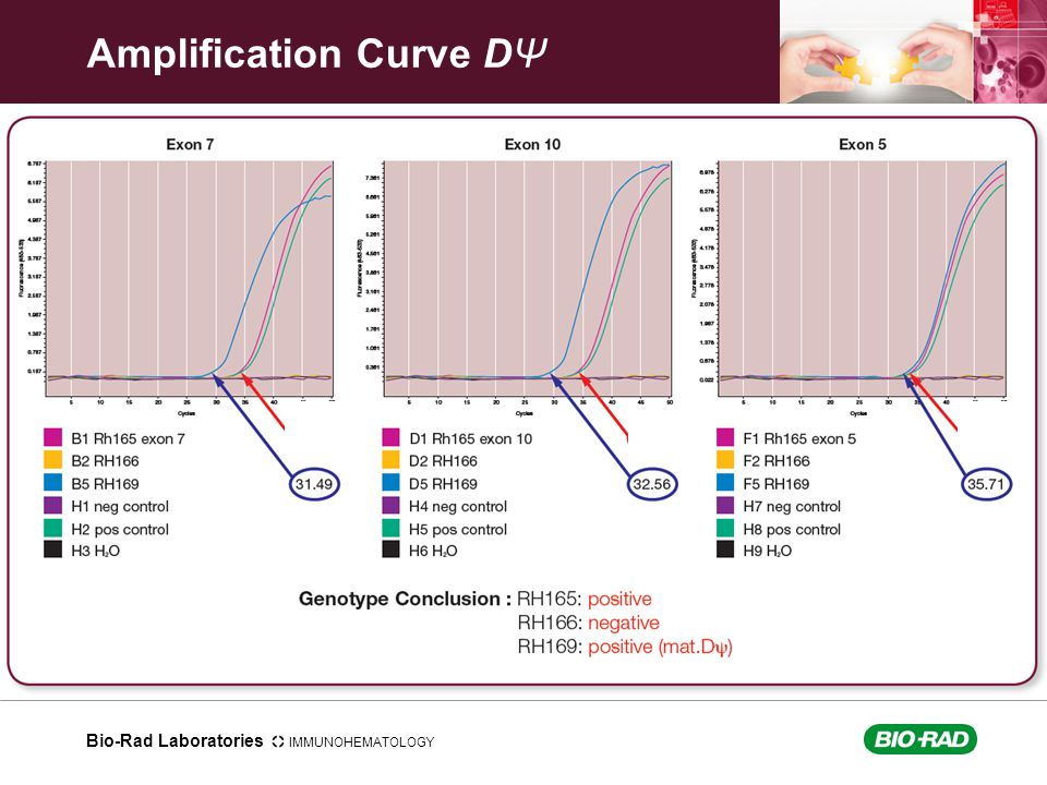 Amplification Curve DΨ