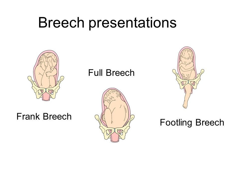 N 106 labor and delivery ppt download 11 breech presentations ccuart Choice Image