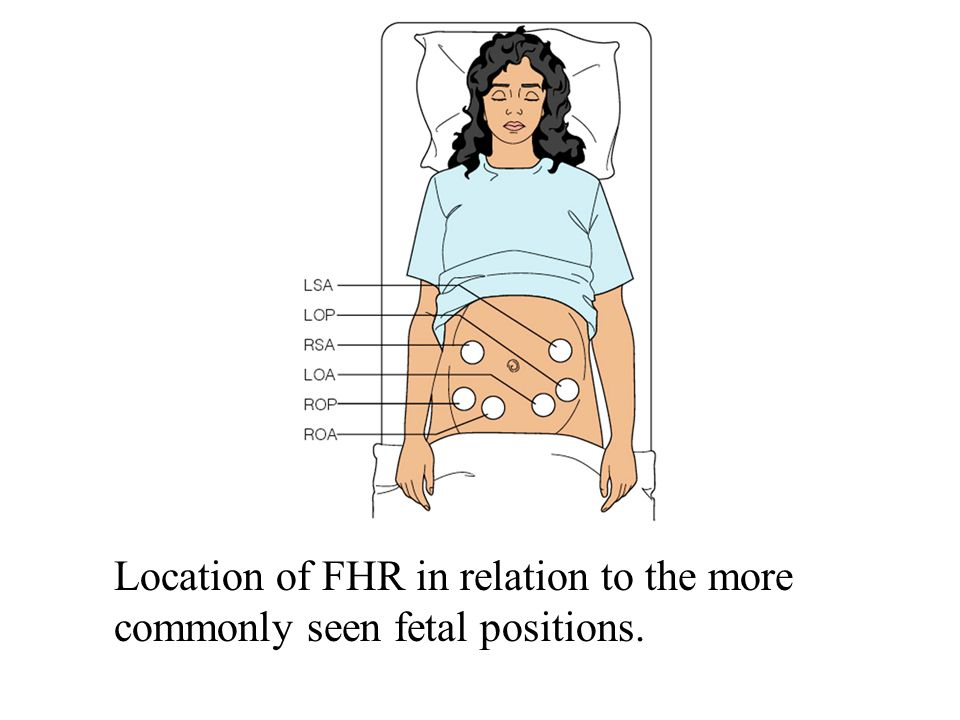 Location of FHR in relation to the more commonly seen fetal positions.