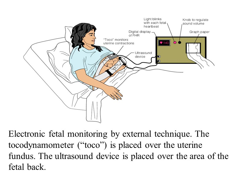 Electronic fetal monitoring by external technique