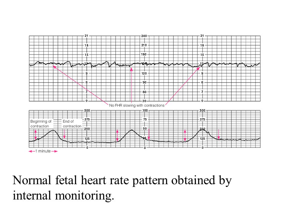 Normal fetal heart rate pattern obtained by internal monitoring.