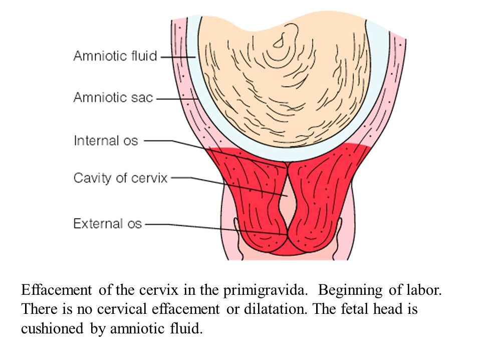 Effacement of the cervix in the primigravida. Beginning of labor