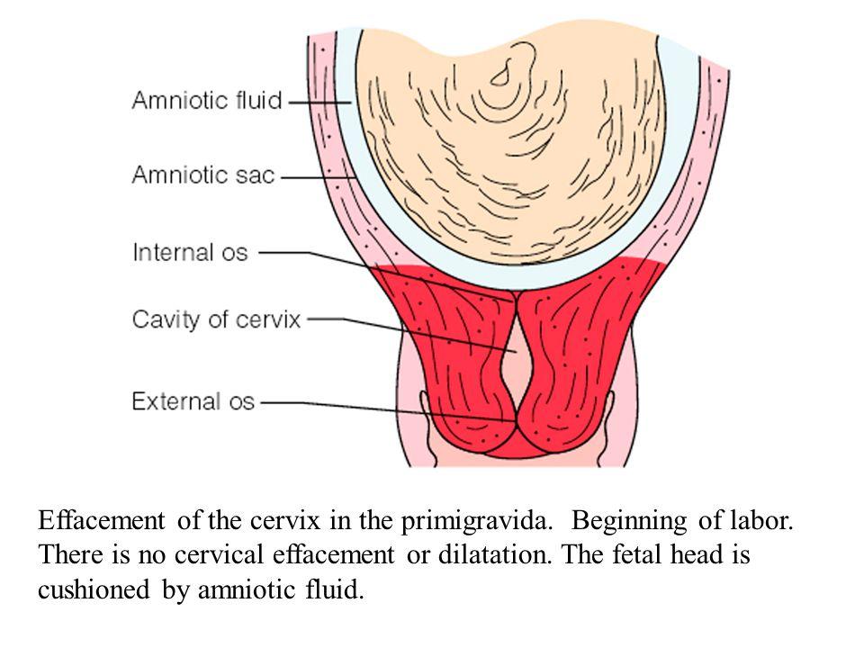 Effacement of the cervix in the primigravida. Beginning of labor