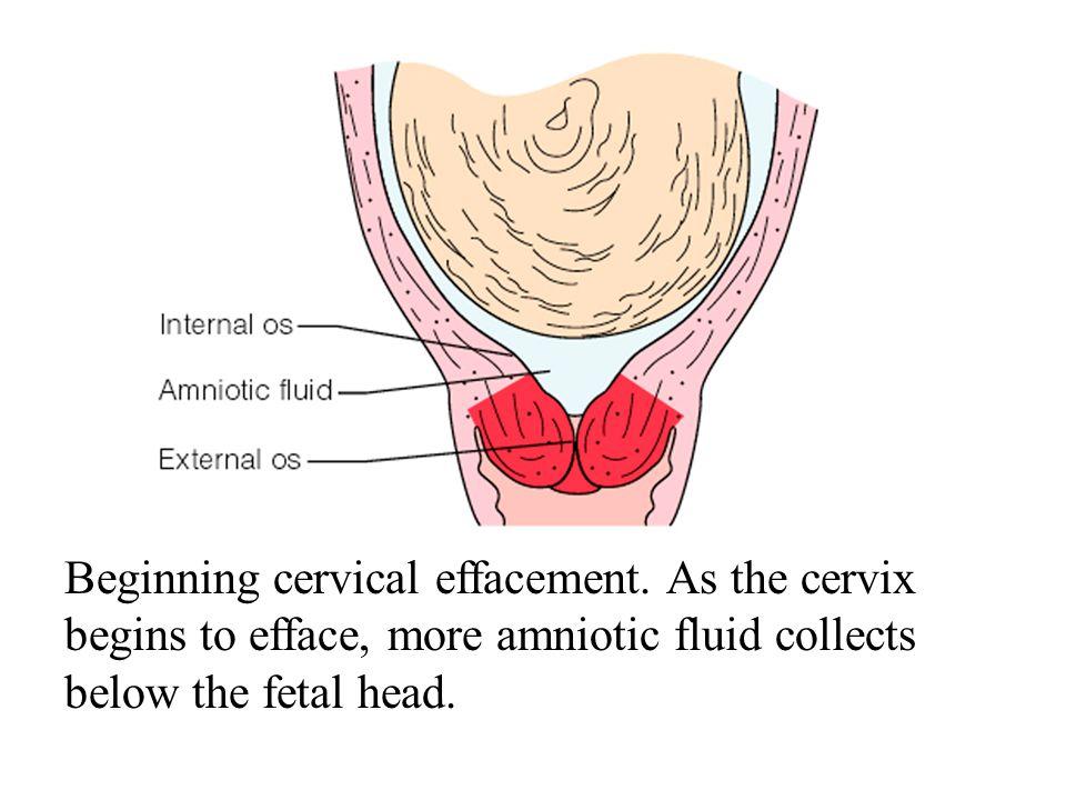 Beginning cervical effacement