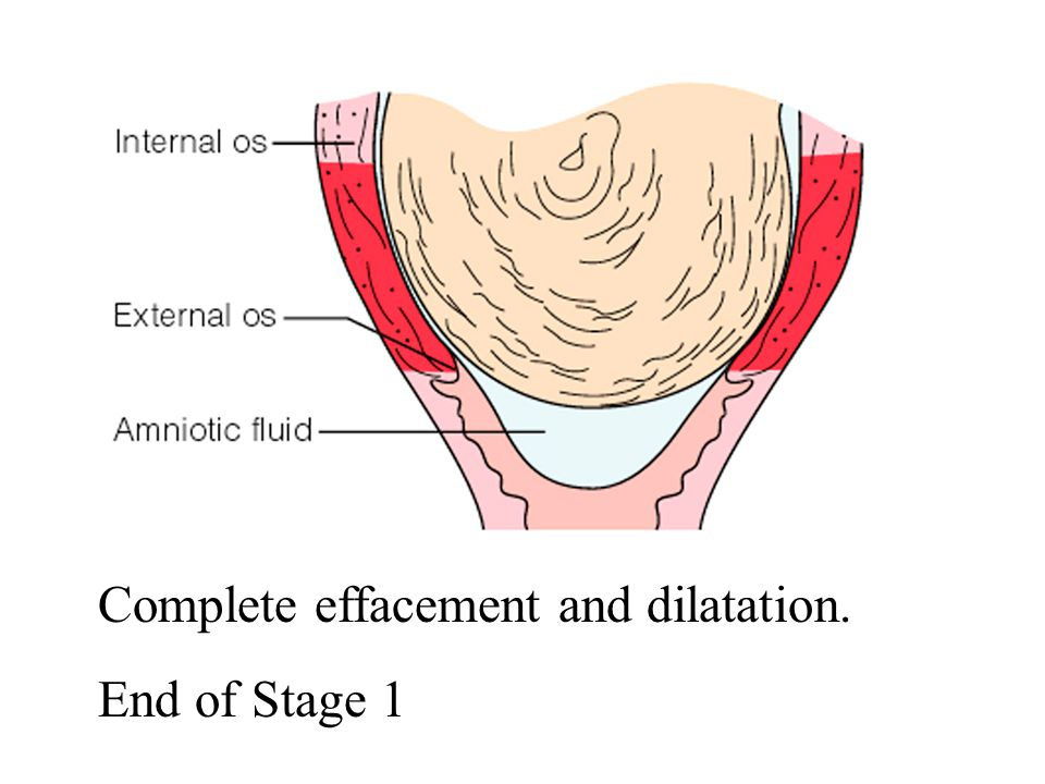 Complete effacement and dilatation.