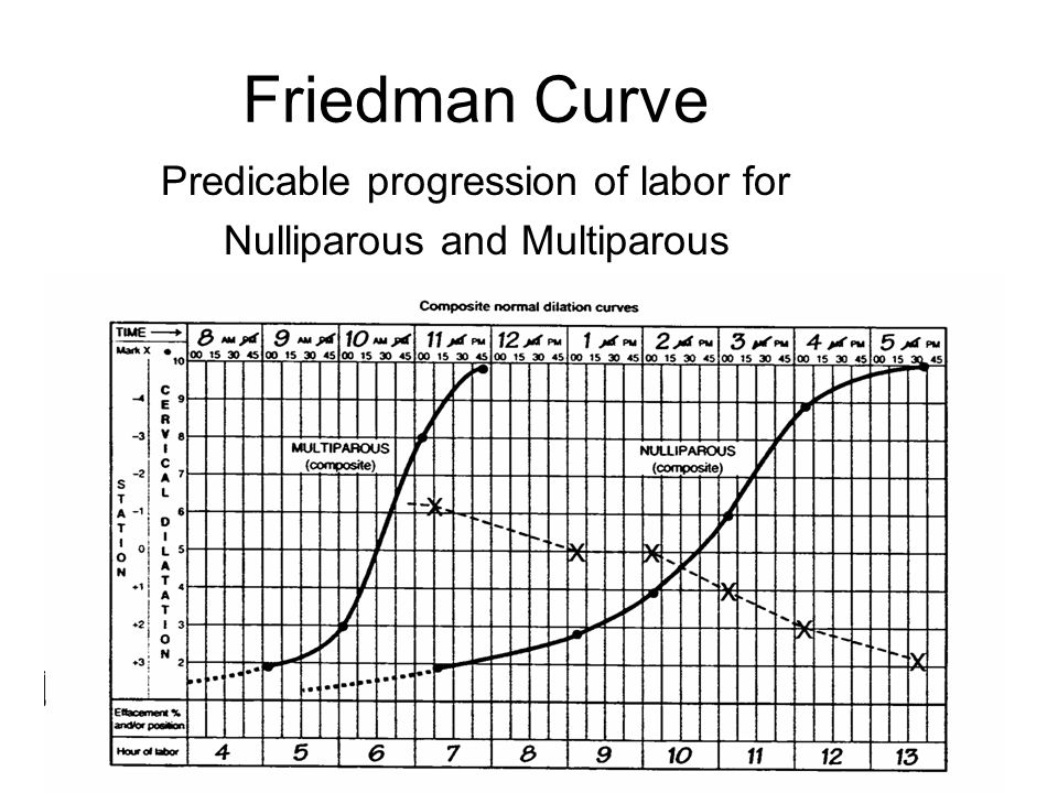 Friedman Curve Predicable progression of labor for