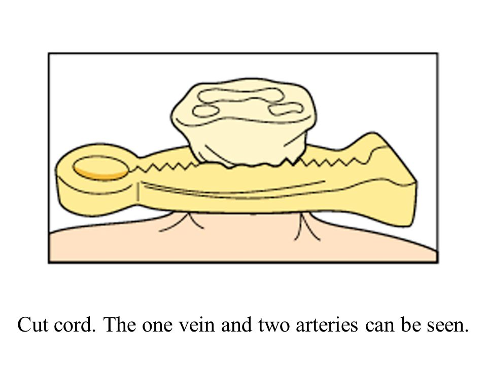 Cut cord. The one vein and two arteries can be seen.