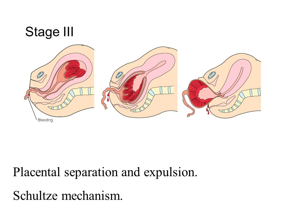Stage III Placental separation and expulsion. Schultze mechanism.