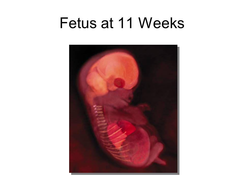 Fetus at 11 Weeks