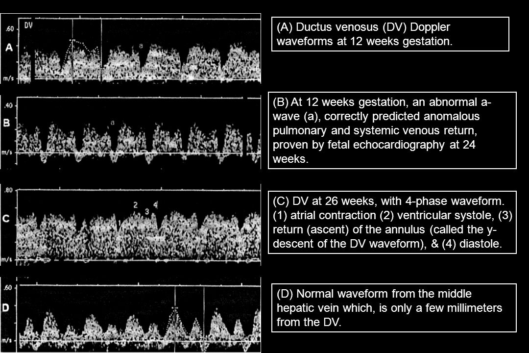 (A) Ductus venosus (DV) Doppler waveforms at 12 weeks gestation.