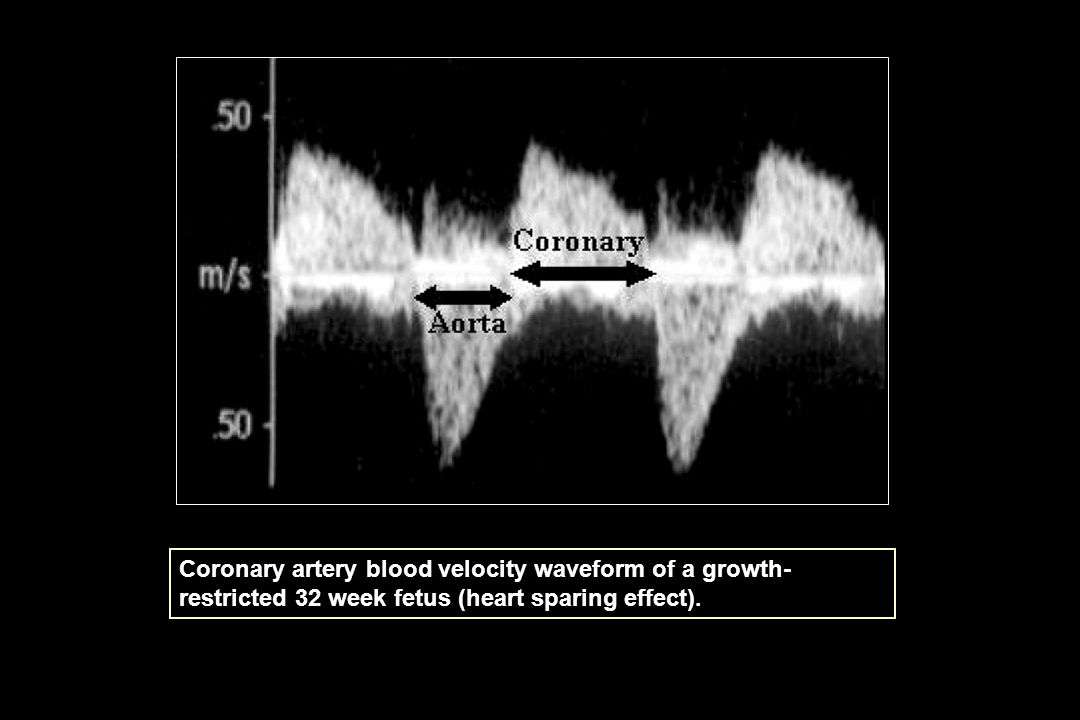 Coronary artery blood velocity waveform of a growth-restricted 32 week fetus (heart sparing effect).