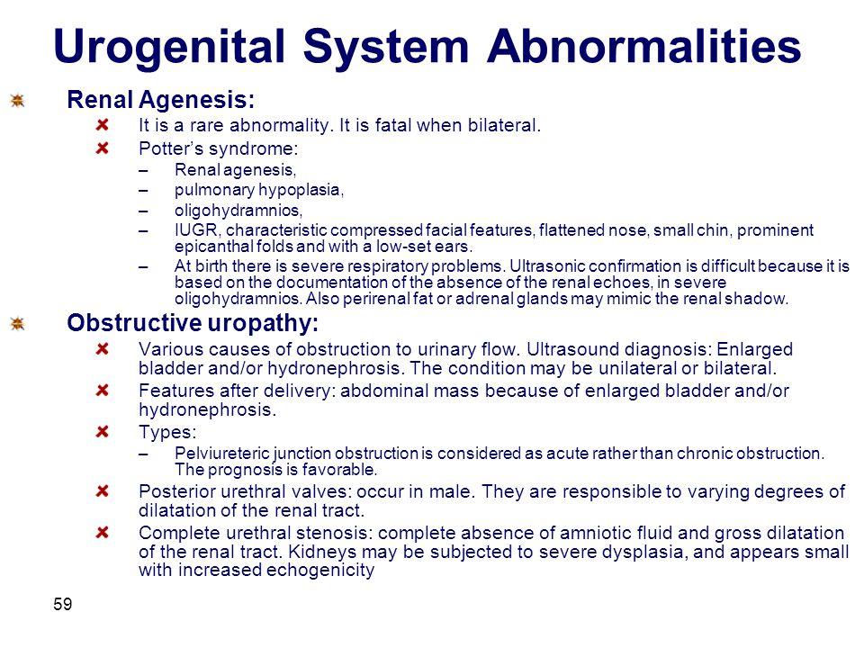 Urogenital System Abnormalities