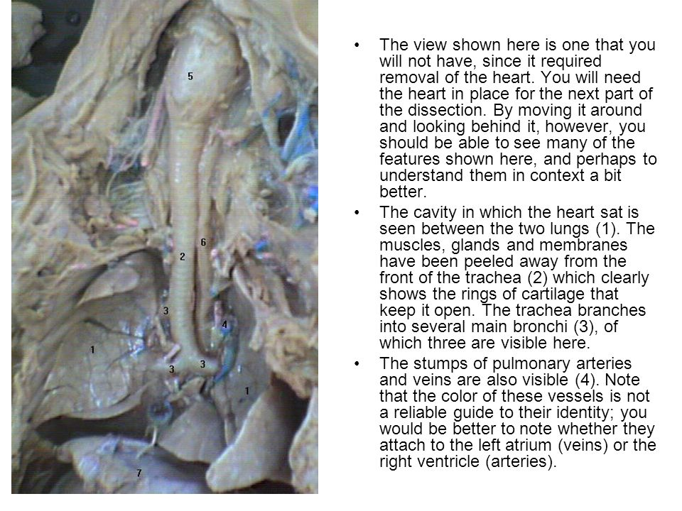 The view shown here is one that you will not have, since it required removal of the heart. You will need the heart in place for the next part of the dissection. By moving it around and looking behind it, however, you should be able to see many of the features shown here, and perhaps to understand them in context a bit better.