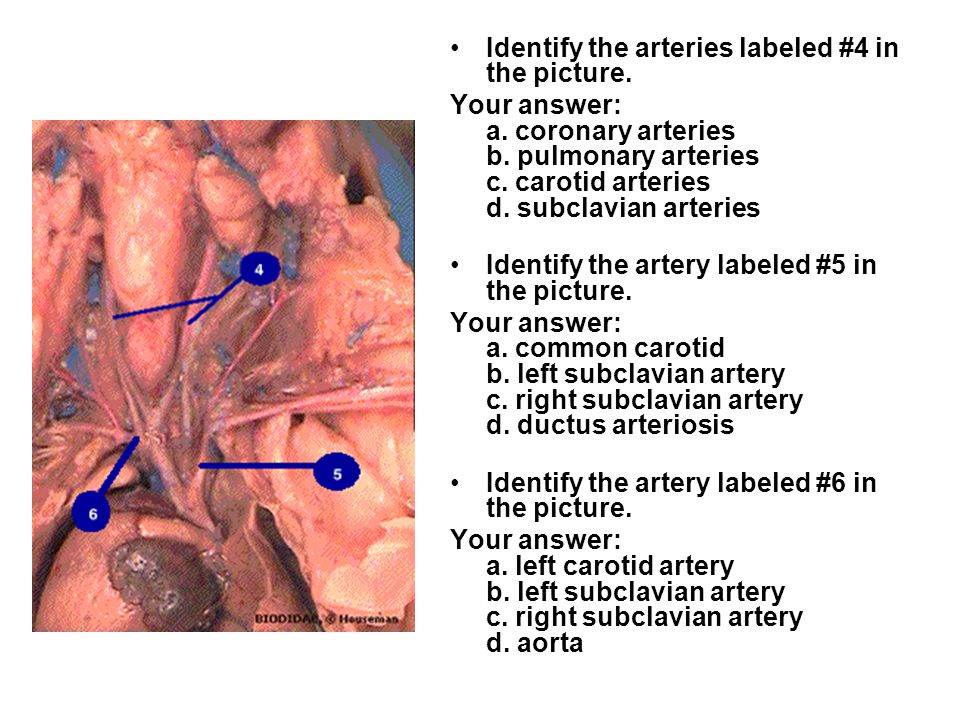 Identify the arteries labeled #4 in the picture.