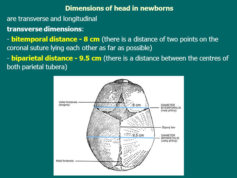 Dimensions of head in newborns
