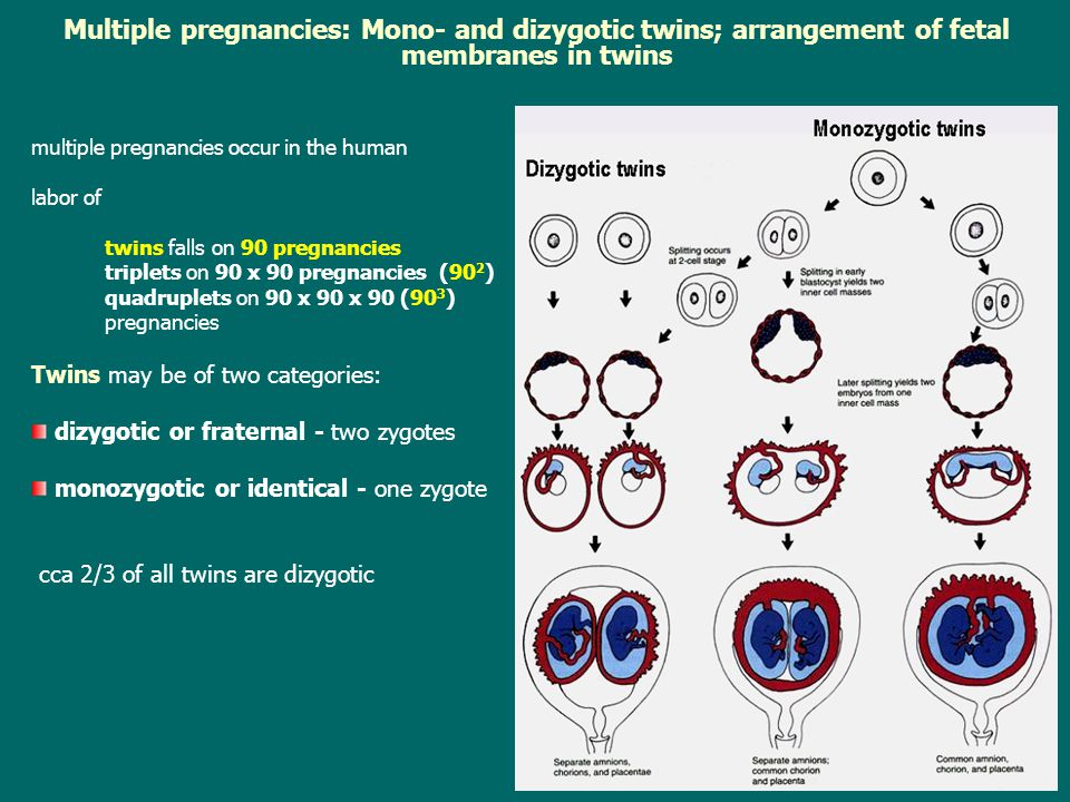 Multiple pregnancies: Mono- and dizygotic twins; arrangement of fetal membranes in twins