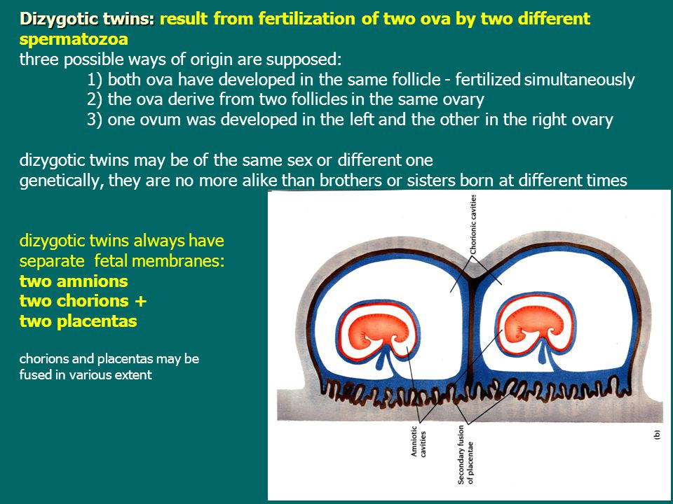Dizygotic twins: result from fertilization of two ova by two different