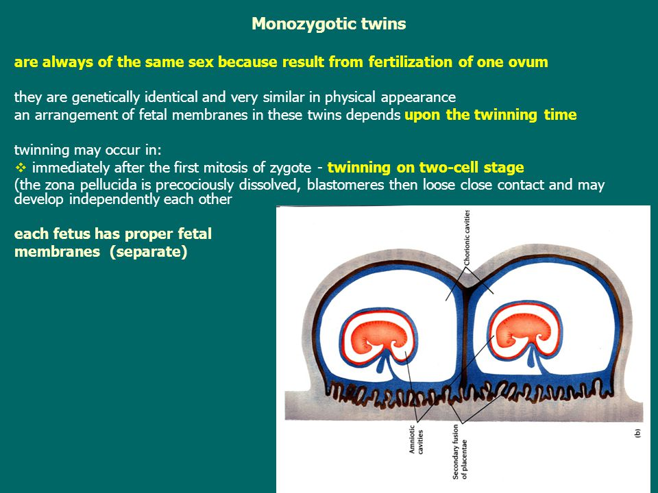 Monozygotic twins are always of the same sex because result from fertilization of one ovum.