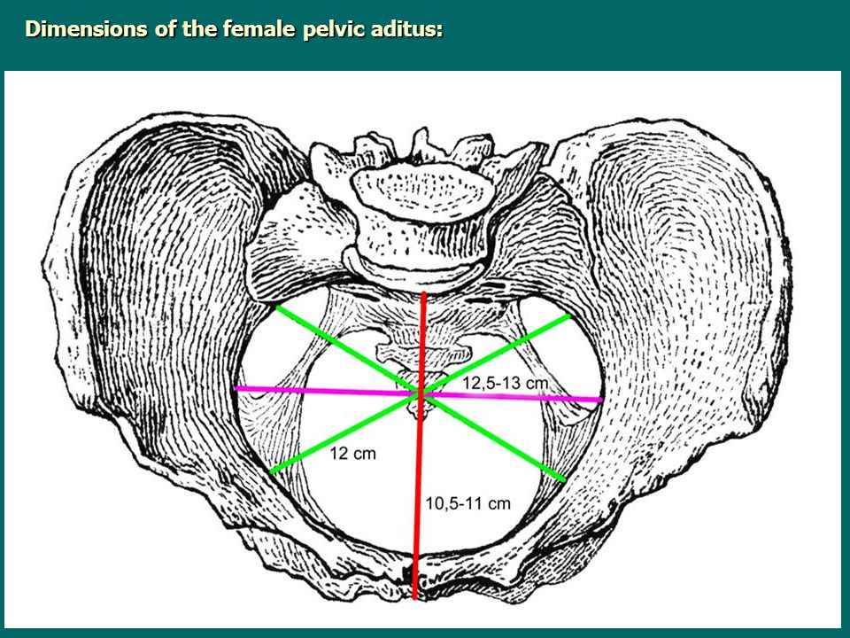 Dimensions of the female pelvic aditus: