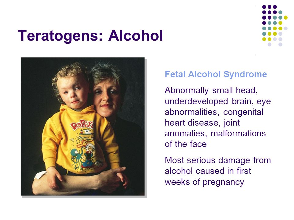 Teratogens: Alcohol Fetal Alcohol Syndrome