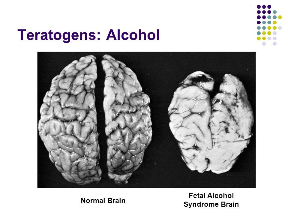 Fetal Alcohol Syndrome Brain