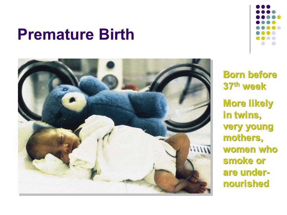 Premature Birth Born before 37th week