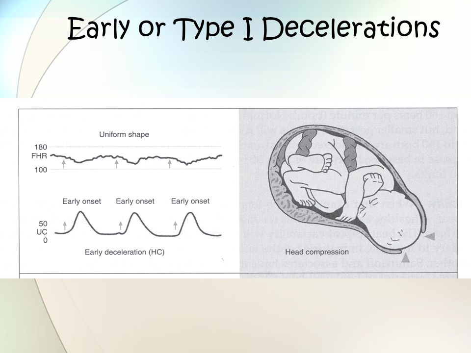 Early or Type I Decelerations