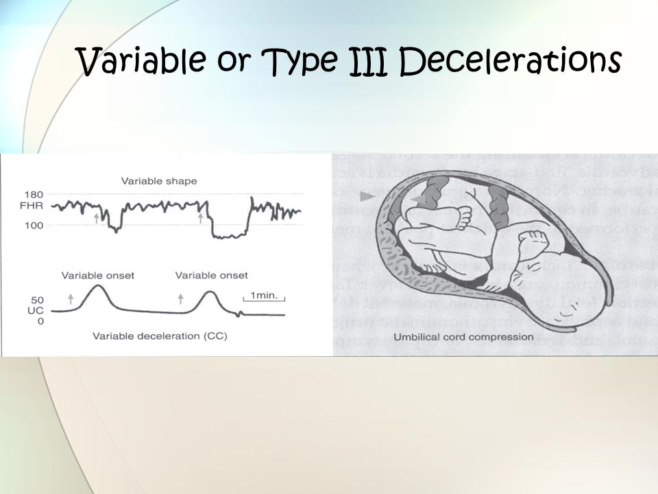 Variable or Type III Decelerations