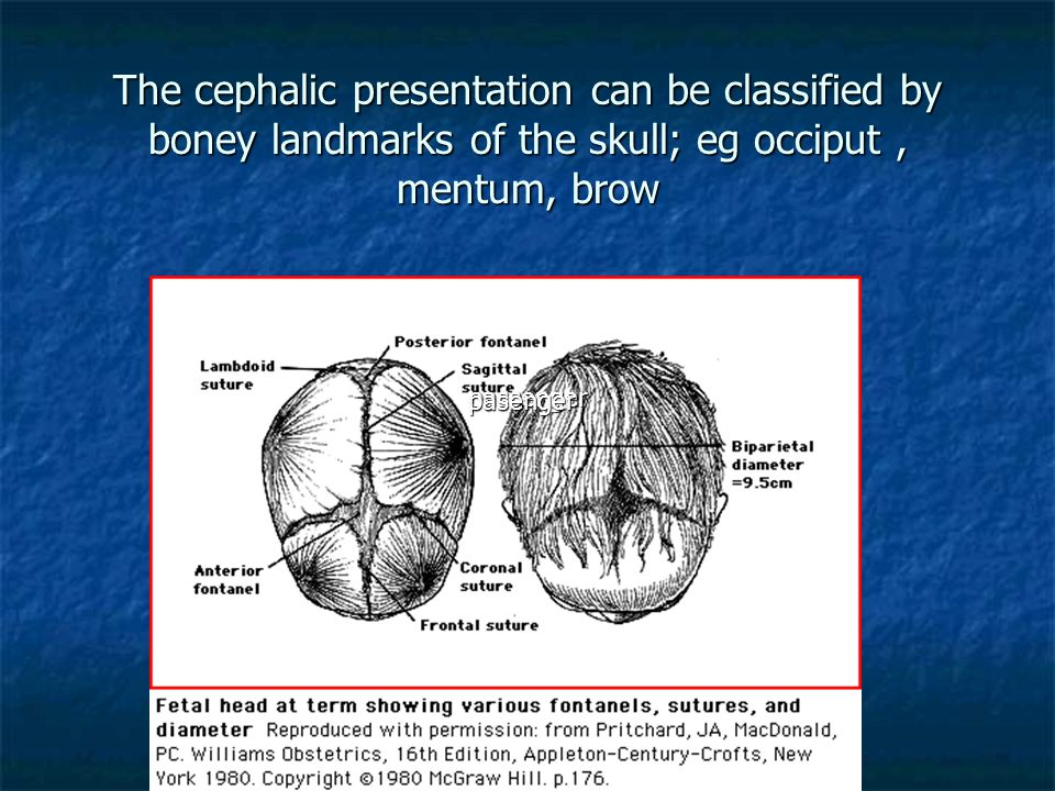 The cephalic presentation can be classified by boney landmarks of the skull; eg occiput , mentum, brow