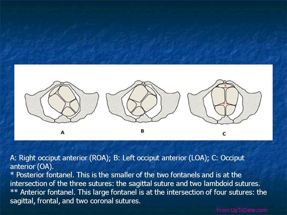 A: Right occiput anterior (ROA); B: Left occiput anterior (LOA); C: Occiput anterior (OA).