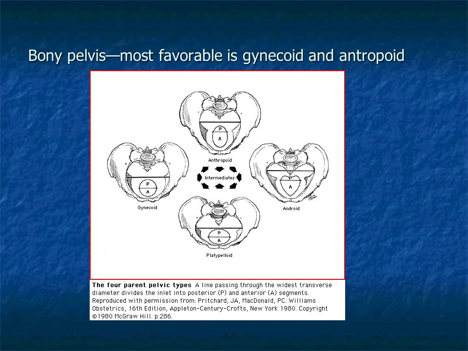 Bony pelvis—most favorable is gynecoid and antropoid