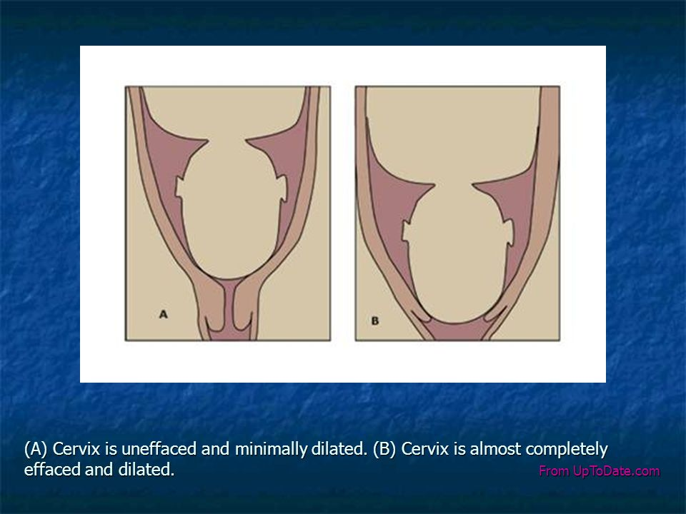 (A) Cervix is uneffaced and minimally dilated
