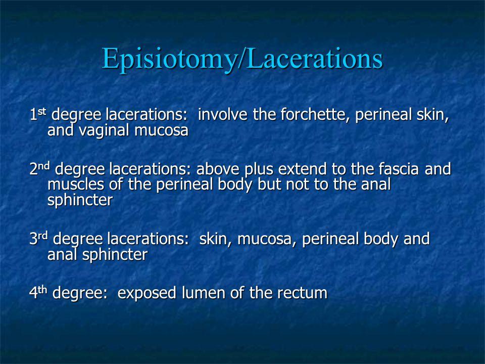 Episiotomy/Lacerations