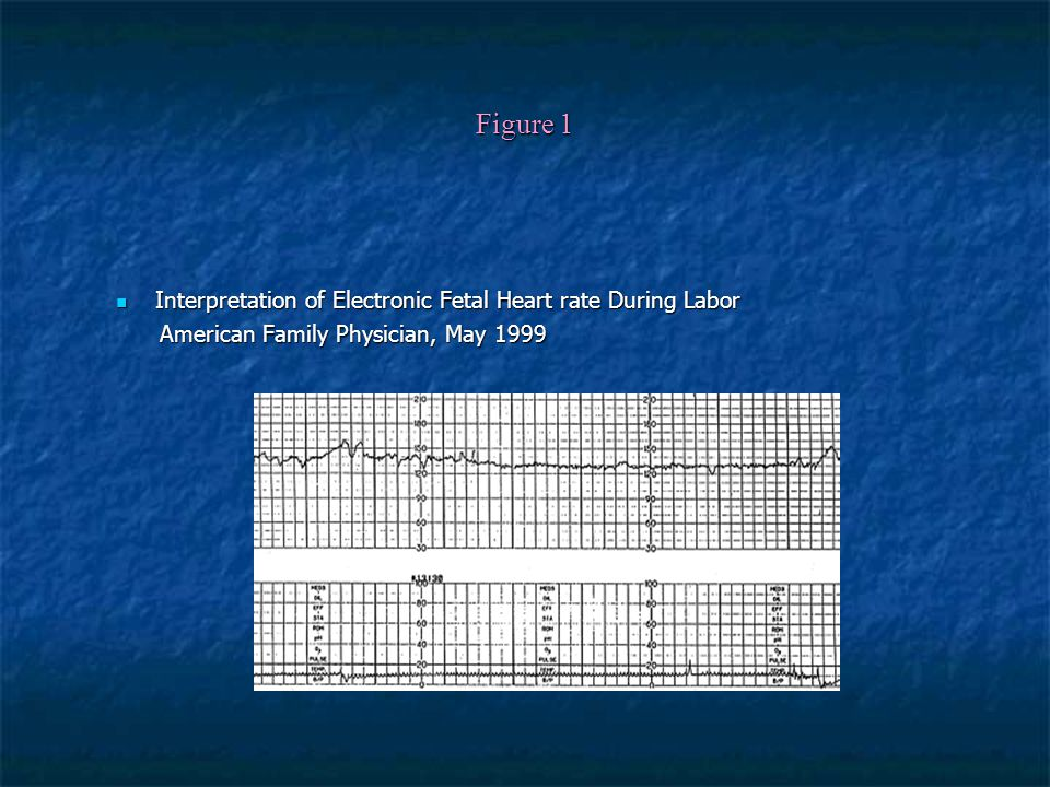 Figure 1 Interpretation of Electronic Fetal Heart rate During Labor