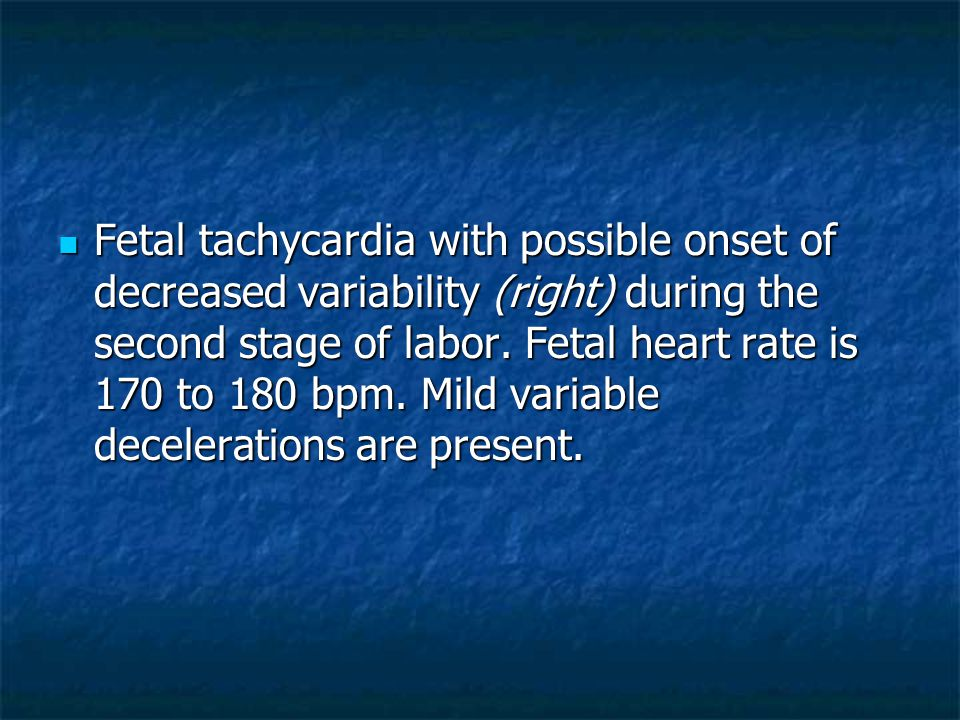 Fetal tachycardia with possible onset of decreased variability (right) during the second stage of labor.