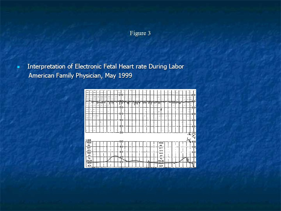 Figure 3 Interpretation of Electronic Fetal Heart rate During Labor.