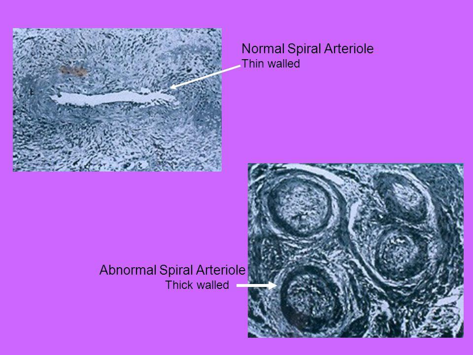 Normal Spiral Arteriole