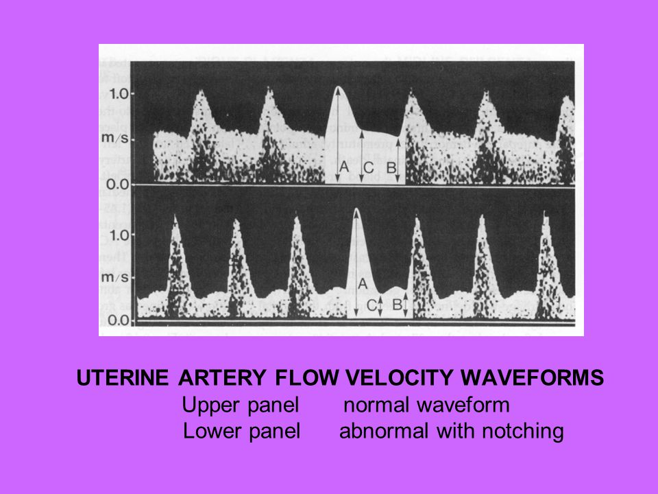 UTERINE ARTERY FLOW VELOCITY WAVEFORMS Upper panel normal waveform Lower panel abnormal with notching