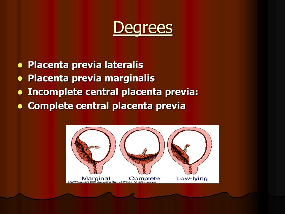 Degrees Placenta previa lateralis Placenta previa marginalis