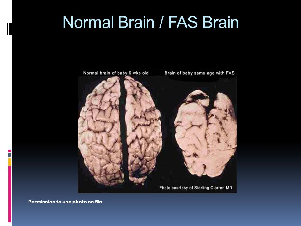 Normal Brain / FAS Brain