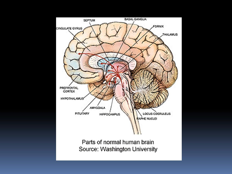 This is a diagram of a normal brain