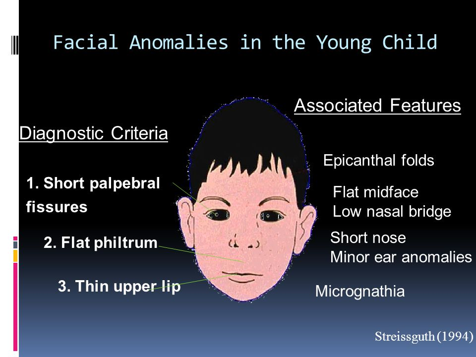 Facial Anomalies in the Young Child