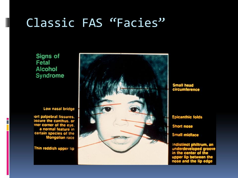 Classic FAS Facies An old but excellent photograph of the face of FAS in a young child.