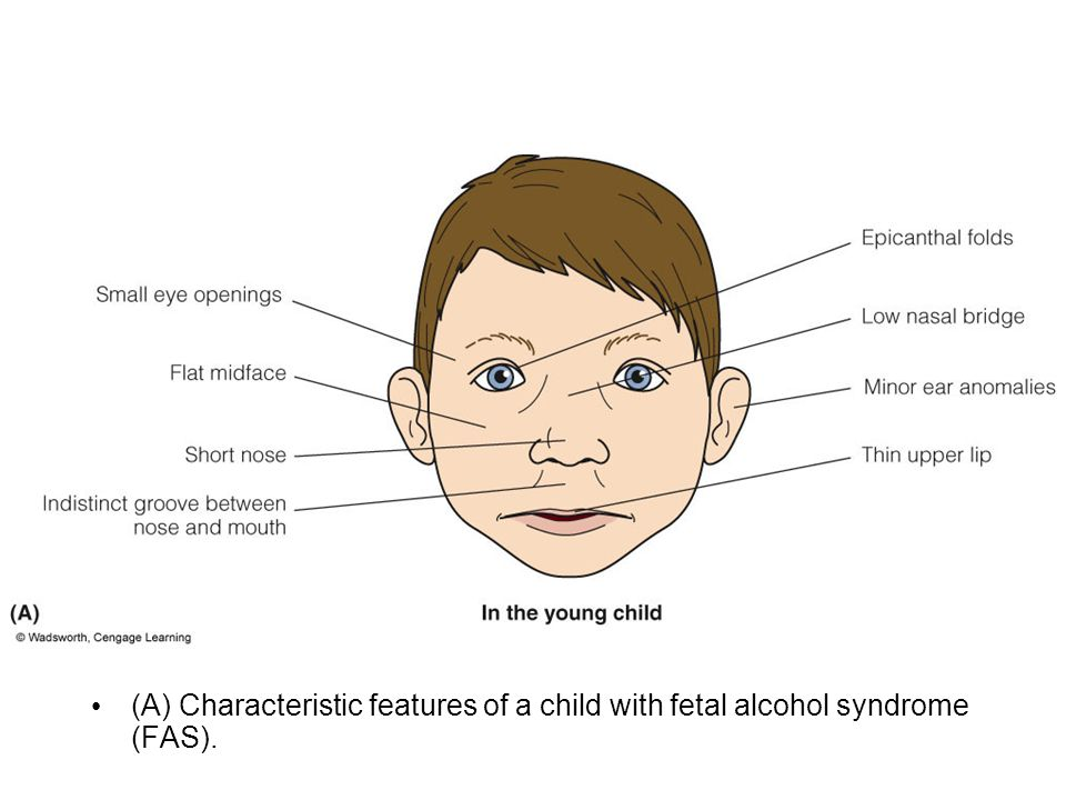 (A) Characteristic features of a child with fetal alcohol syndrome (FAS).