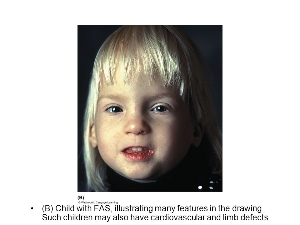 (B) Child with FAS, illustrating many features in the drawing