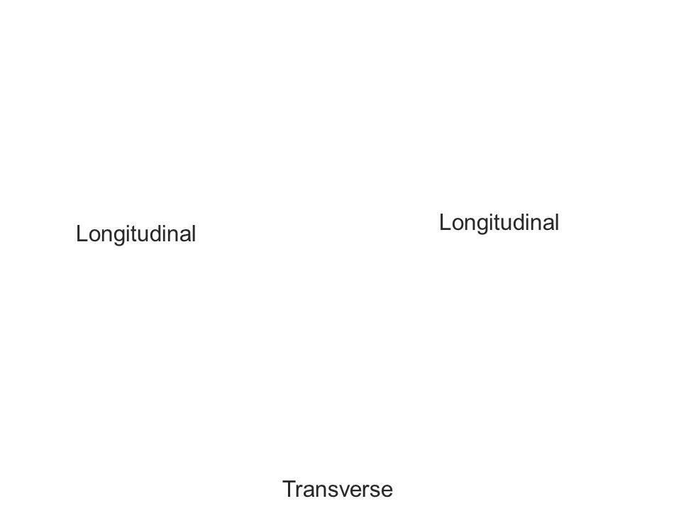 Longitudinal Longitudinal Transverse