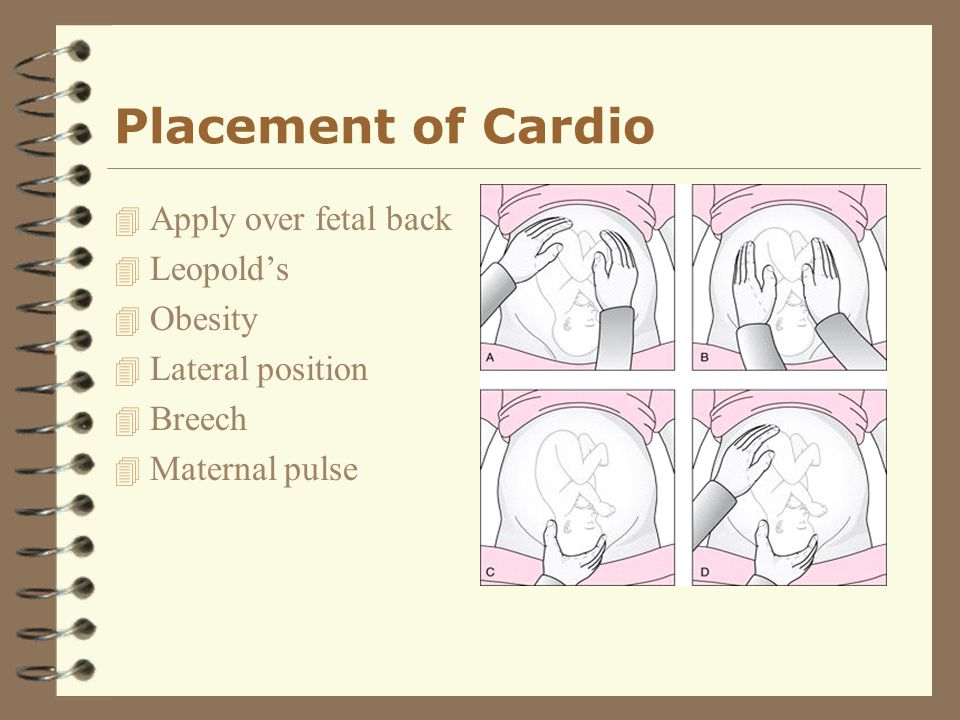 Placement of Cardio Apply over fetal back Leopold's Obesity