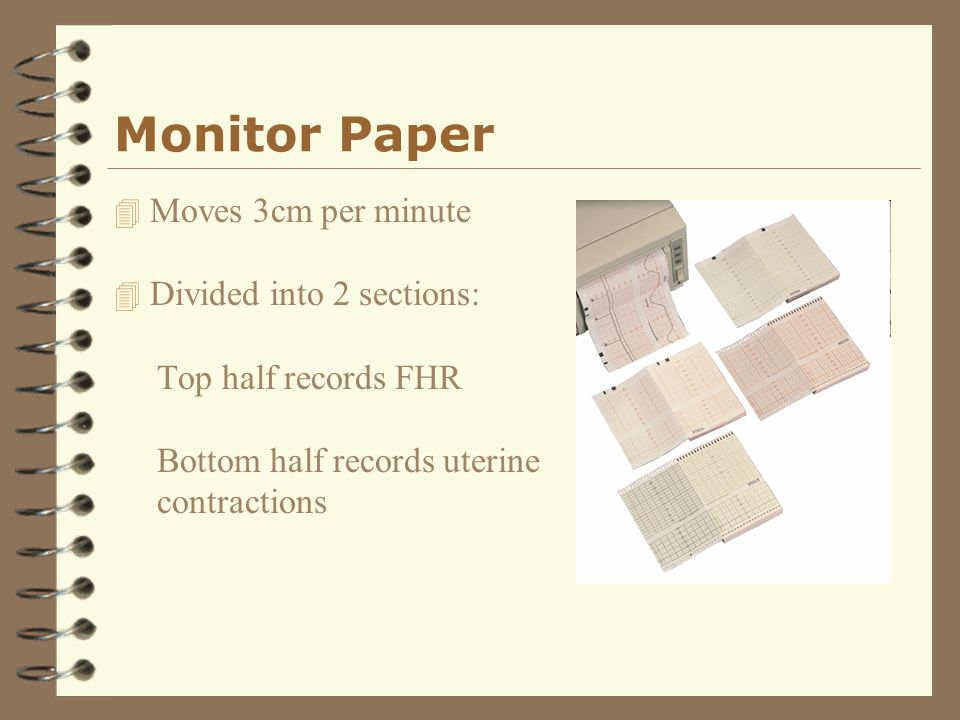 Monitor Paper Moves 3cm per minute Divided into 2 sections: