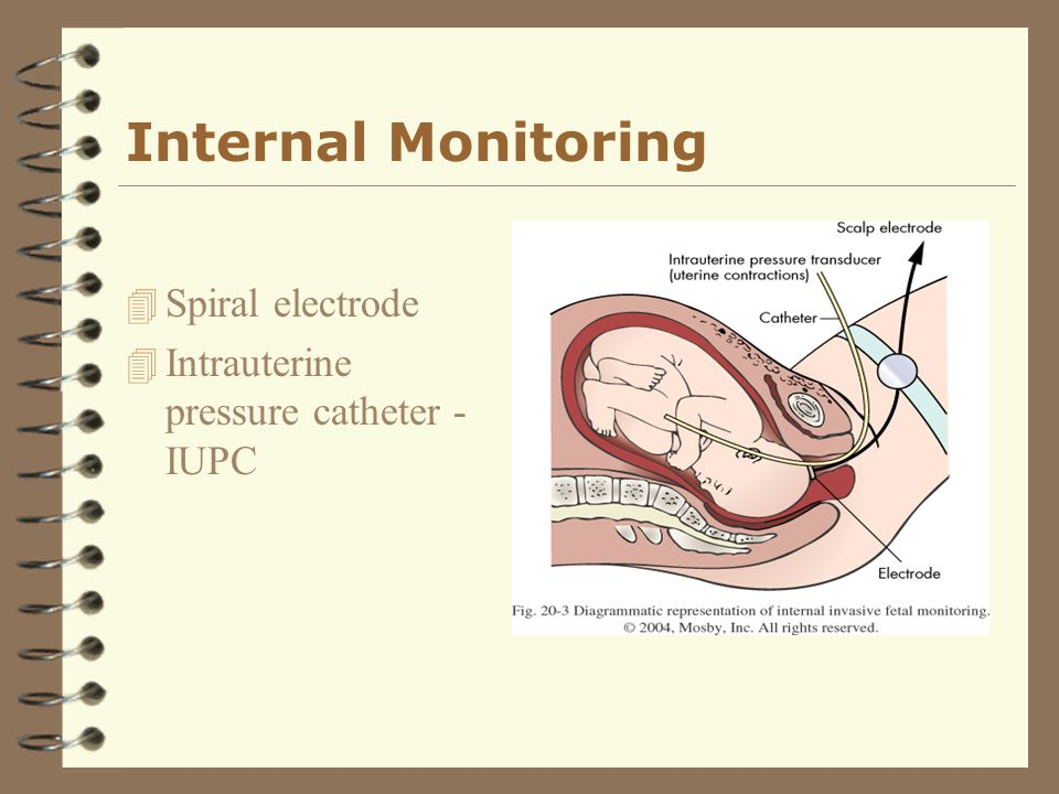 Internal Monitoring Spiral electrode