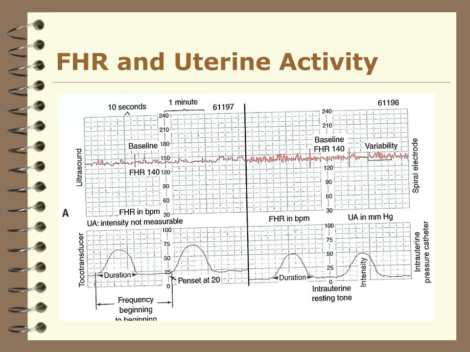 Fetal Assessment During Labor Ppt Video Online Download